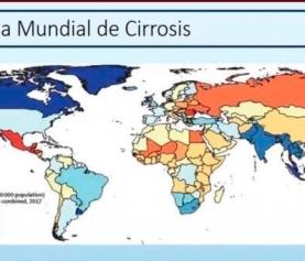 Hablemos sobre cirrosis
