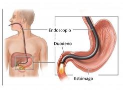 A quién, cómo y por qué realizar un estudio endoscópico?